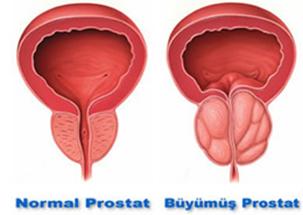 lazerle prostat ameliyatı